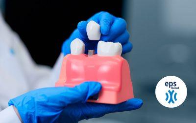 Implantes dentales: ¿Qué es un implante dental?