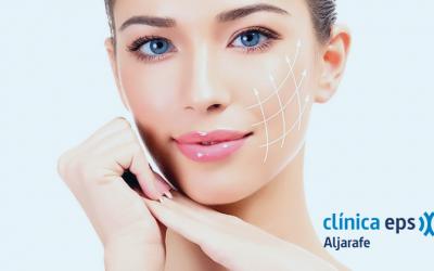¿Rejuvenecimiento facial sin cirugía? Es posible gracias al tratamiento de hilos tensores